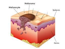 Sunrise di Borgagne avvia la prevenzione del melanoma